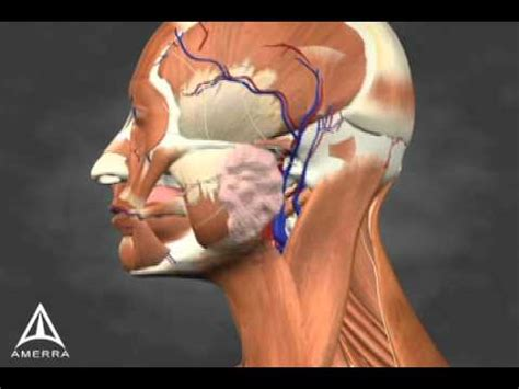 Sialorrhea Injection Site Identification - 3D Medical